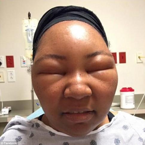 Cô gái biến dạng khuôn mặt vì dị ứng thuốc nhuộm tóc