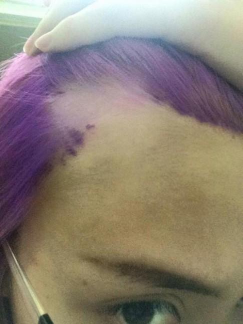 Cô gái Việt bị phồng rộp, tróc da đầu vì nhuộm tóc