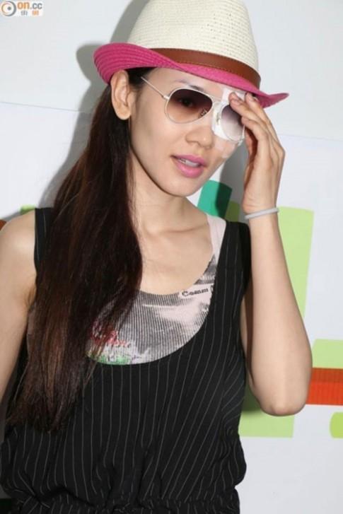 Cựu Hoa hậu Hồng Kông hỏng mắt vì đeo kính áp tròng