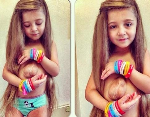 Kỳ lạ bé gái xinh hơn tiên nữ có trái tim ngoài lồng ngực