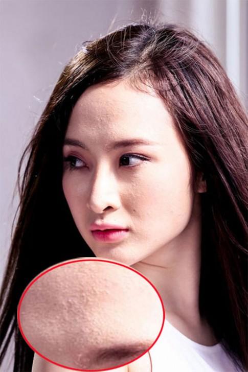 Người đẹp Việt khổ sở vì sẹo, mụn