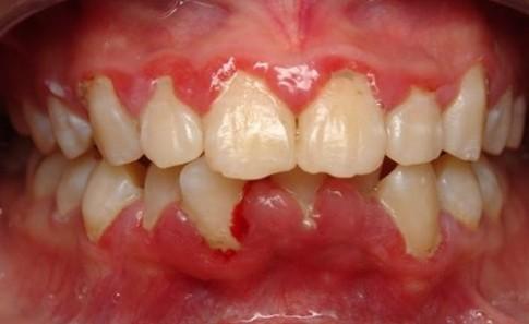 Người nào đánh răng không đủ 2 lần/ngày sẽ khó thoát 10 bệnh này