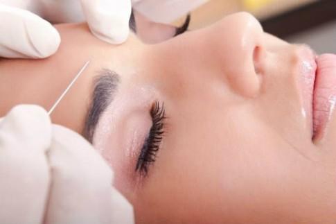 Những lý do để nói không với botox