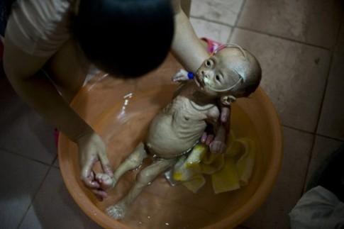 Rơi lệ: bé 13 tháng gầy trơ xương vì bệnh lạ
