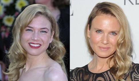 Sao Hollywood với khuôn mặt biến dạng