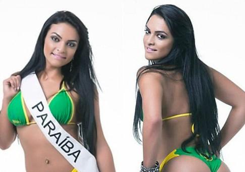 Thí sinh HH Siêu vòng 3 Brazil bị liệt vì nhảy lầu tự tử