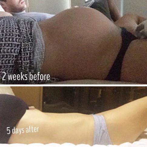 Vòng eo phẳng lì sau sinh đôi 5 ngày khiến chị em 'phục sát đất'