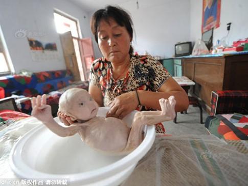 Xót xa bé sơ sinh không có hậu môn chỉ nặng 2,4kg