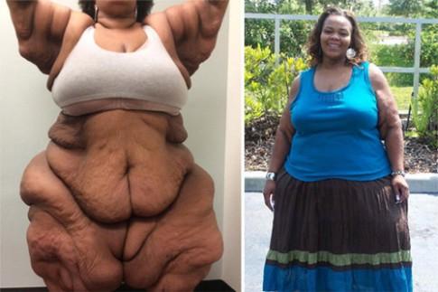 Choáng với bộ da thừa nặng 1 tạ sau khi giảm cân
