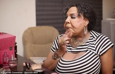 Chuyện đời người chuyển giới bơm xi măng vào cơ thể