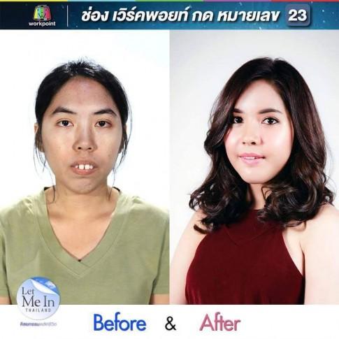 Cô gái Thái Lan răng hô 'lột xác' bất ngờ nhờ thẩm mỹ