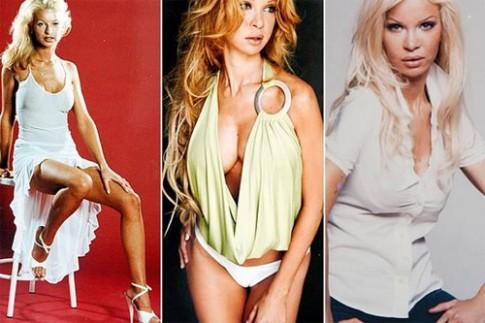 Cựu người mẫu gặp họa vì lạm dụng bơm mông, nâng ngực