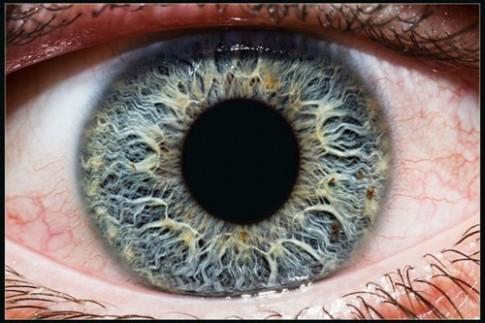 Đây là ý nghĩa của chấm đen trên mống mắt, hãy kiểm tra ngay
