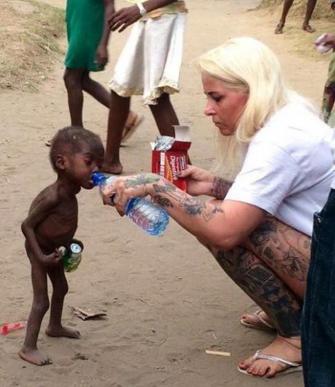 Hình ảnh mập mạp của em bé từng bị bỏ đói chấn động thế giới