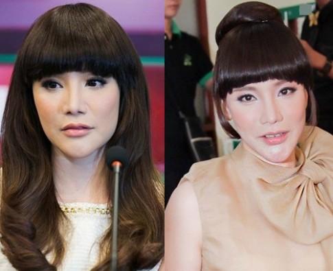 Hoài nghi trước cằm dài, nhọn bất thường của người đẹp Việt