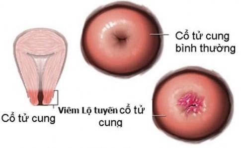Mất cả chục triệu đồng vì viêm lộ tuyến cổ tử cung