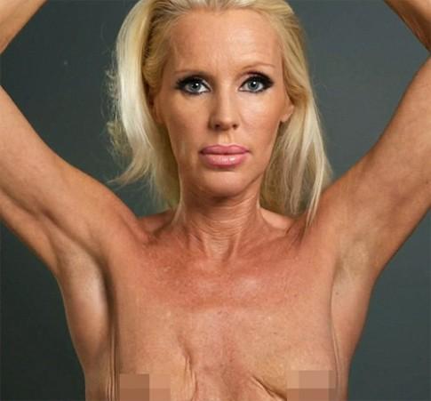 Nữ diễn viên có bộ ngực khủng khiếp vì khuẩn ăn thịt