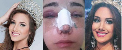 Tân Hoa hậu Quốc tế 2015 lộ ảnh nâng mũi, cắt mí