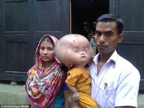 Xót xa cậu bé 2 tuổi có đầu to như trái bóng