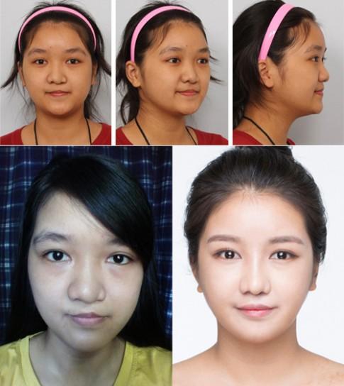 Bất ngờ với nụ cười đẹp của 2 cô gái Việt từng sứt môi