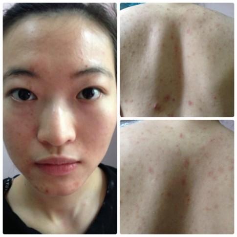 Khó tin 2 mỹ nữ này từng bị viêm da, chàm mặt