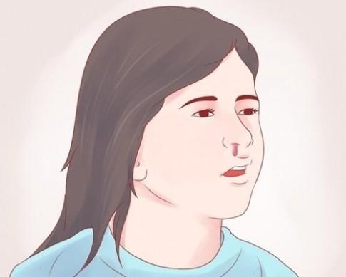 Theo bạn, khi bị chảy máu cam thì nên cúi đầu xuống hay ngửa đầu ra?
