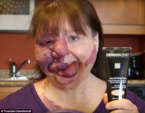 Cảm động câu chuyện con trai make up để che khuôn mặt biến dạng cho mẹ