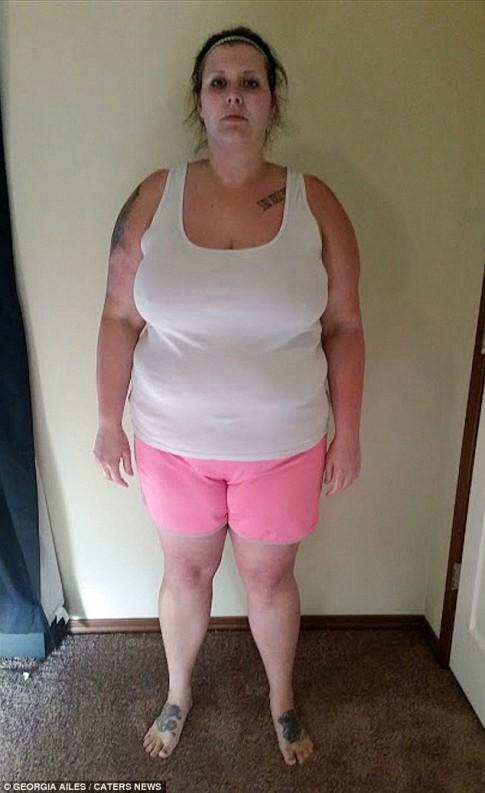Choáng với da thừa hậu giảm cân của người đẹp Mỹ