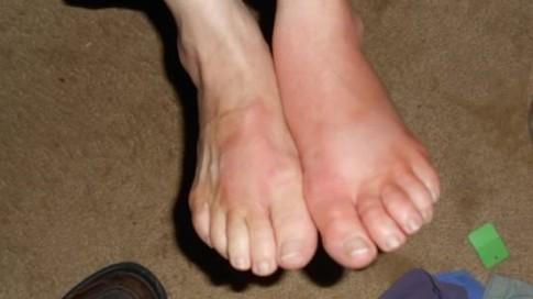 Nhờ phát hiện một thay đổi nhỏ ở chân, tôi không phải chạy thận cả đời