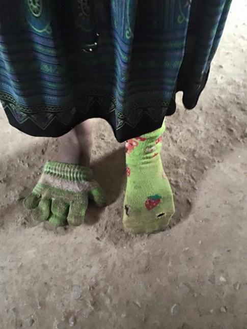 Bé gái dân tộc dùng găng tay làm tất khiến dân mạng xót xa