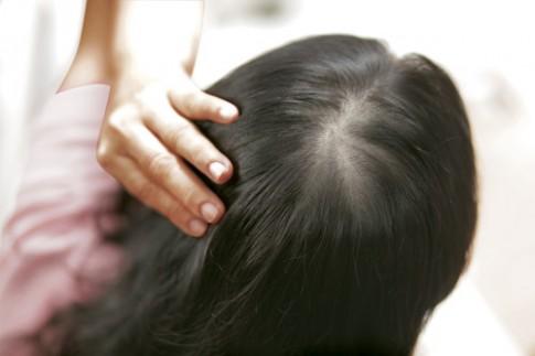Megumi - Ngăn rụng từ chân tóc, dưỡng tóc mọc dày.