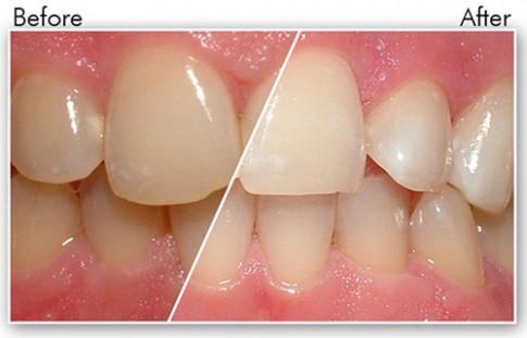 Tự chế hỗn hợp lấy cao răng sạch bóng như đi nha sĩ