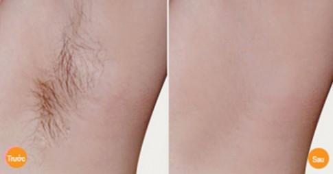 Hỗn hợp giúp vùng da dưới cánh tay vừa trắng lại thơm tho