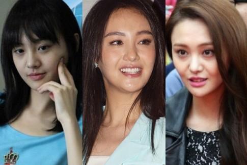 Mỹ nhân Hoa ngữ khiến fans giật mình vì dao kéo hỏng