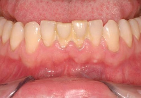 Cao răng, mảng bám, hôi miệng kinh niên cũng hết nếu ngậm thứ này mỗi tối