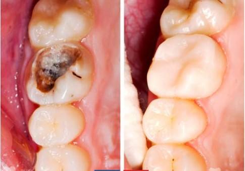 Có thể bạn chưa biết, 5 thần dược này chữa đau răng viêm lợi cực đỉnh