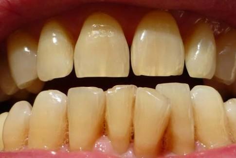 Cứ nghiền nát thứ này ra, chà đến đâu mảng bám ố vàng trên răng bay hết đến đó