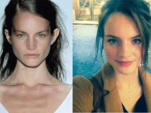 Cựu người mẫu nổi tiếng kể về nạn ép cân kinh hoàng