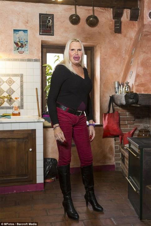 Người chuyển giới gây hoảng sợ vì vẻ ngoài biến dạng