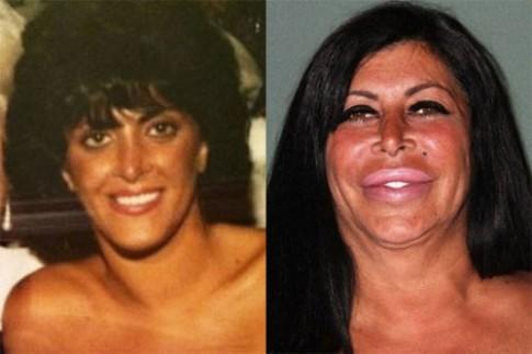 """Thảm họa dao kéo"" Angela Raiola đã qua đời ở tuổi 55"