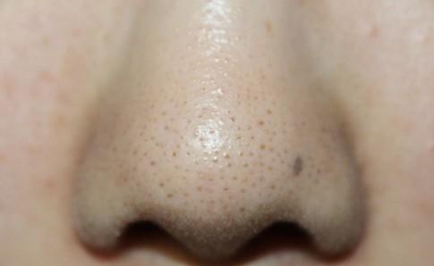 Tự làm gel lột mụn để lôi bằng sạch tất cả mụn cám, mụn đầu đen trên mũi