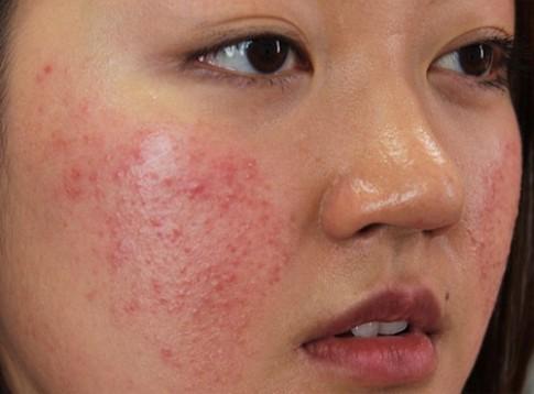Mụn và vết thâm sẽ biến mất không dấu vết nhờ 1 phút thoa mặt nạ mỗi ngày