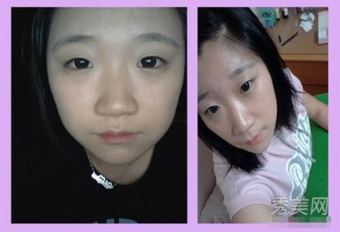 Phẫu thuật thẩm mỹ ám ảnh giới trẻ Hàn