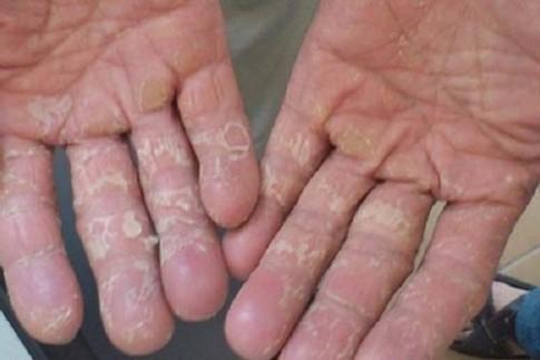 Trị dứt điểm tình trạng da bị bong tay do rửa bát với công thức độc và lạ này