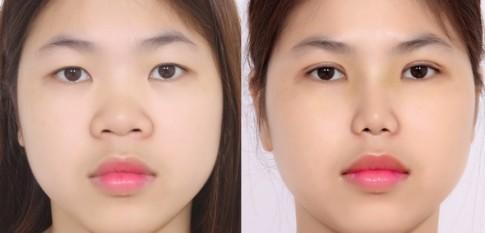 Cắt mí mắt những lưu ý cần biết trước và sau khi phẫu thuật