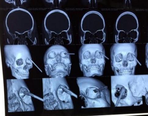 Cứu sống bệnh nhân bị đoạn sắt đâm xuyên mắt