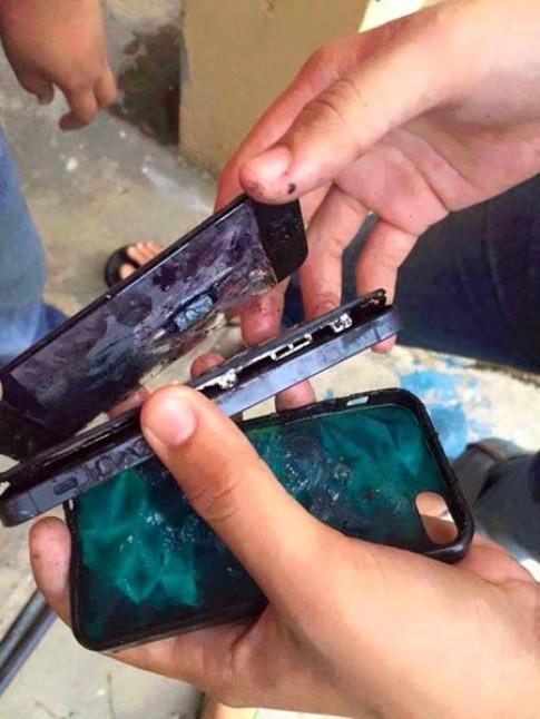 Iphone 5 phát nổ, nam thanh niên bị bỏng nặng