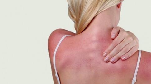 Ngộ độc ánh mặt trời: Bệnh tưởng đùa mà nguy hại không tưởng