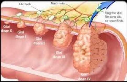 3 điều cực kỳ quan trọng để dự phòng bệnh ung thư đường tiêu hóa