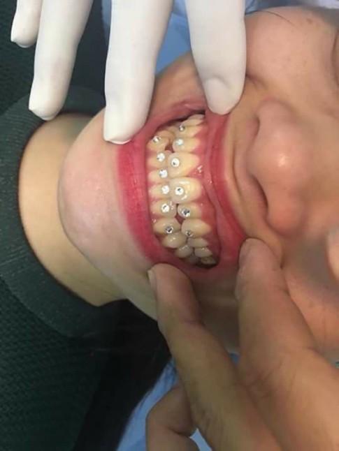 Ham làm đẹp, cô gái gắn 12 viên đá vào răng rồi khổ sở tìm tới nha sĩ